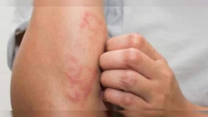 México reporta 89 casos de Lepra en el 2020, ya son 18 estados con al menos un caso