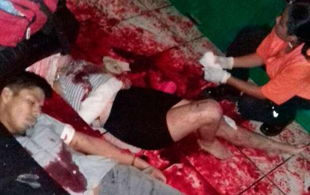 Una verdadera masacre en el bar gay de Veracruz