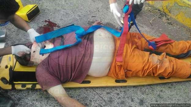 Motociclista lesionado de gravedad al accidentarse a exceso de velocidad