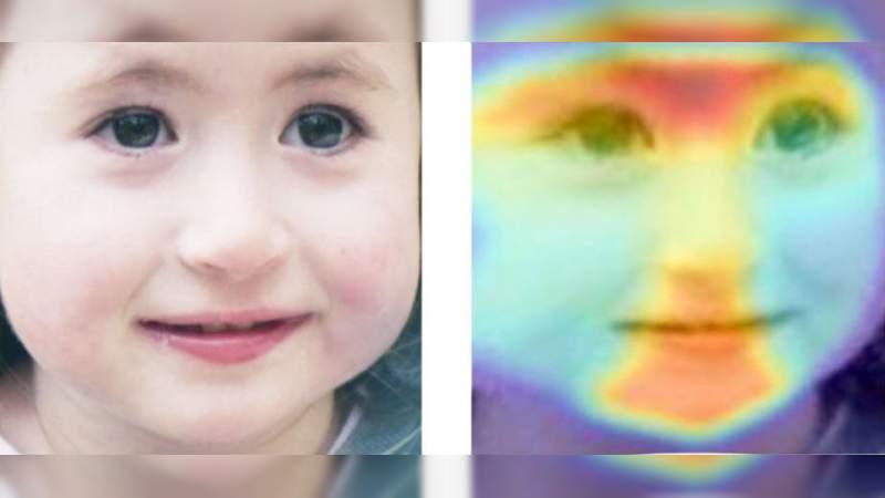 Inteligencia Artificial puede diagnosticar desórdenes raros usando solo una fotografía de la cara